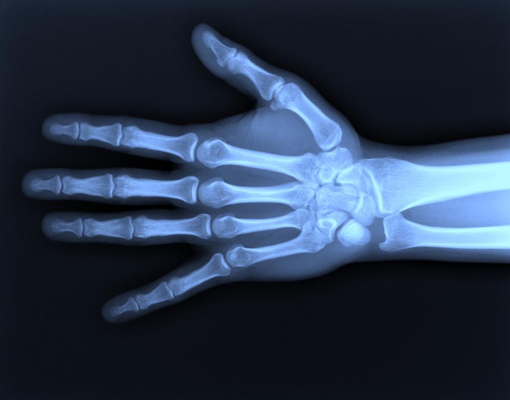 8 ноября 1895 года были открыты рентгеновские лучи