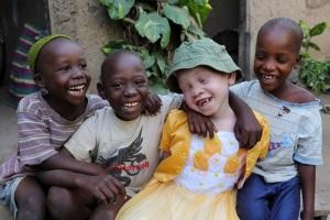Международный день распространения информации об альбинизме