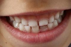Здоровье и красота зубов с самого детства