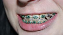 Как проходит установка брекетов и дальнейшее исправление прикуса и расположения зубов?