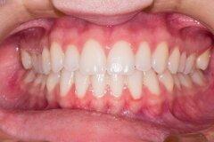 Установка имплантов – гарантия здоровья зубов