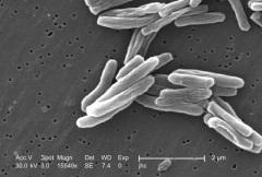 Роберт Кох выступил с сенсационным сообщением — ему удалось выделить бактерию, вызывающую туберкулез