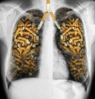 Одна из основных причин развития болезни — курение и табачный дым (Фото: Protasov AN, Shutterstock)
