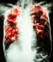 Туберкулез — инфекционное заболевание, передающееся воздушно-капельным путем (Фото: Puwadol Jaturawutthichai, Shutterstock)